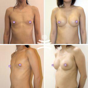 Увеличение груди |