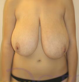 Коррекция асимметрии груди: before