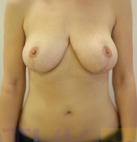 Коррекция асимметрии груди: after