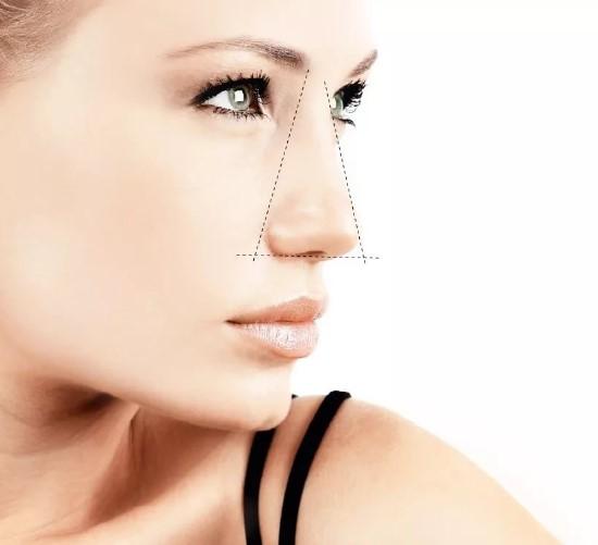Операция по уменьшению носа в Медиэстетик