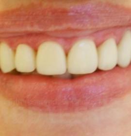 Чистка зубов: after