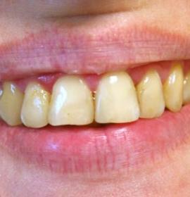 Чистка зубов: before
