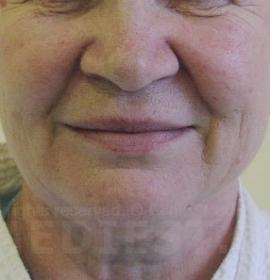 Филаментлифтинг лица: before