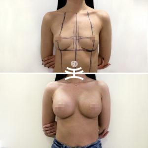 Увеличение груди в Медиэстетик |