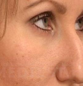 Коррекция формы носа: before