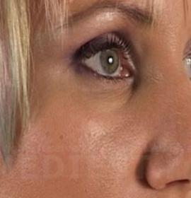 Коррекция формы носа: after