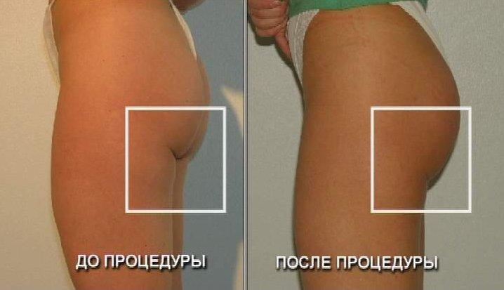 Глютеопластика в клинике Медиэстетик