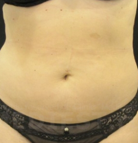 Коррекция фигуры Body Shape: before