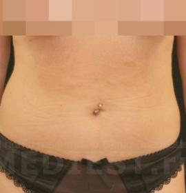 Коррекция фигуры Body Shape: after