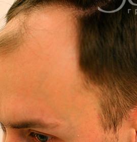 Плазмолифтинг головы: before