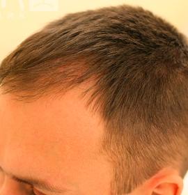 Лечение волос и кожи головы: after