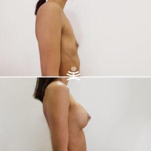 Увеличение груди в Медиэстетик | Увеличение груди