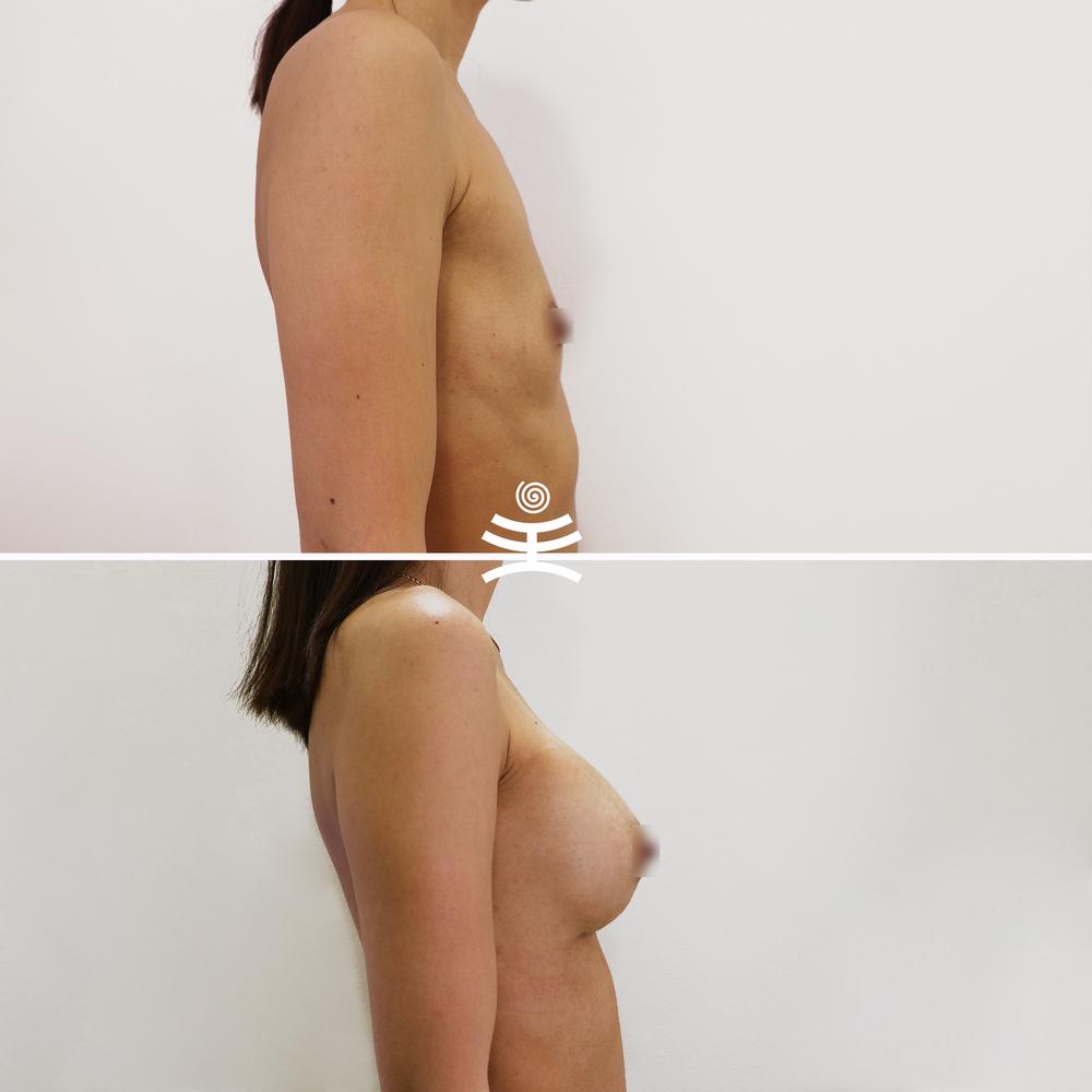 Увеличение груди в Медиэстетик   Увеличение груди