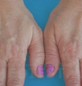 Моделирование рук: before