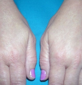 Моделирование рук: after