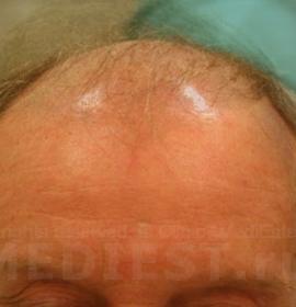 Пересадка волос лоскутом: before