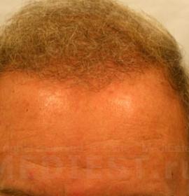 Пересадка волос лоскутом: after