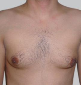 Лечение гипергидроза: before