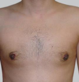Лечение гипергидроза: after