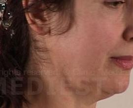 Коррекция овала лица: before