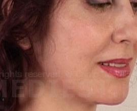 Коррекция овала лица: after