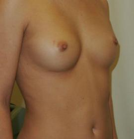 Увеличение груди: before