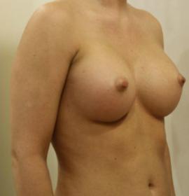 Пластика груди (маммопластика): after