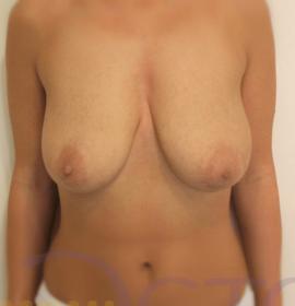 Подтяжка груди: before