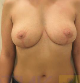 Подтяжка груди: after