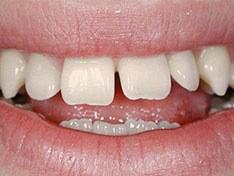 Протезирование зубов: before