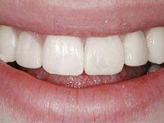 Протезирование зубов: after