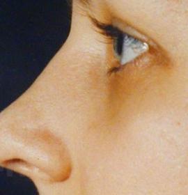Ринопластика (пластика носа): after