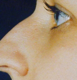 Ринопластика (пластика носа): before