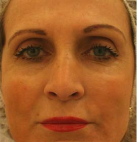 Плазмолифтинг лица: after