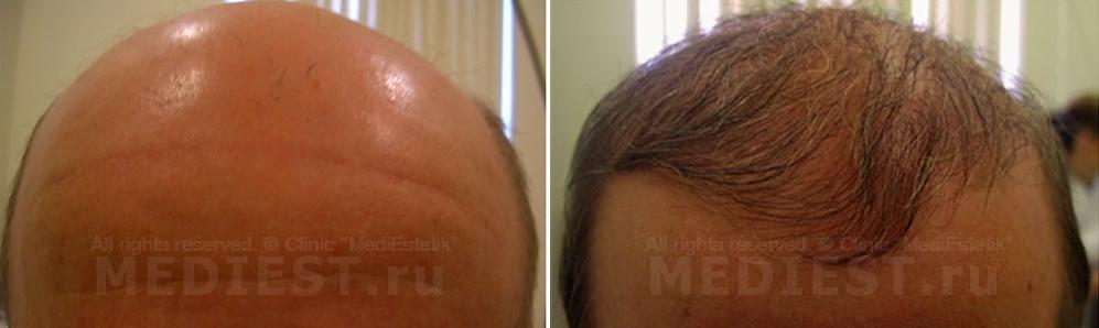 Маска для волос с димексидом и облепиховым маслом видео