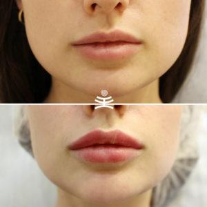 Увеличение губ в Медиэстетик | Увеличение губ