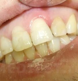 Восстановление зубов: after