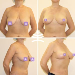 Вертикальная подтяжка груди |