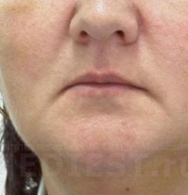 Золотое армирование лица: before