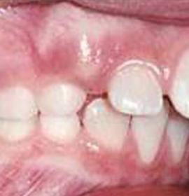 Протезирование и реставрация зубов с CEREC AC: before