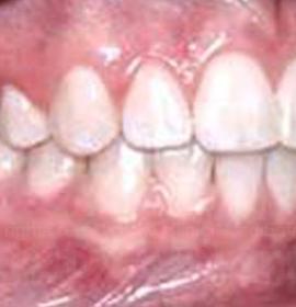 Протезирование и реставрация зубов с CEREC AC: after