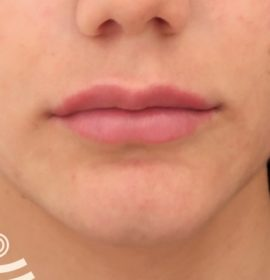 Результаты работы врача Агаджанян после пластики губ
