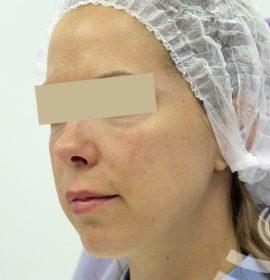 До и после контурной пластики скул от врача Денисовой