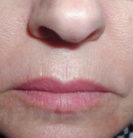 Пластика кончика носа: before