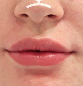 Работа врача Клементьевой К.Б по увеличению губ
