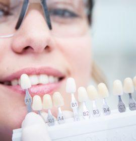 Виниры на зубы: after