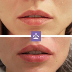 Контурная пластика губ |