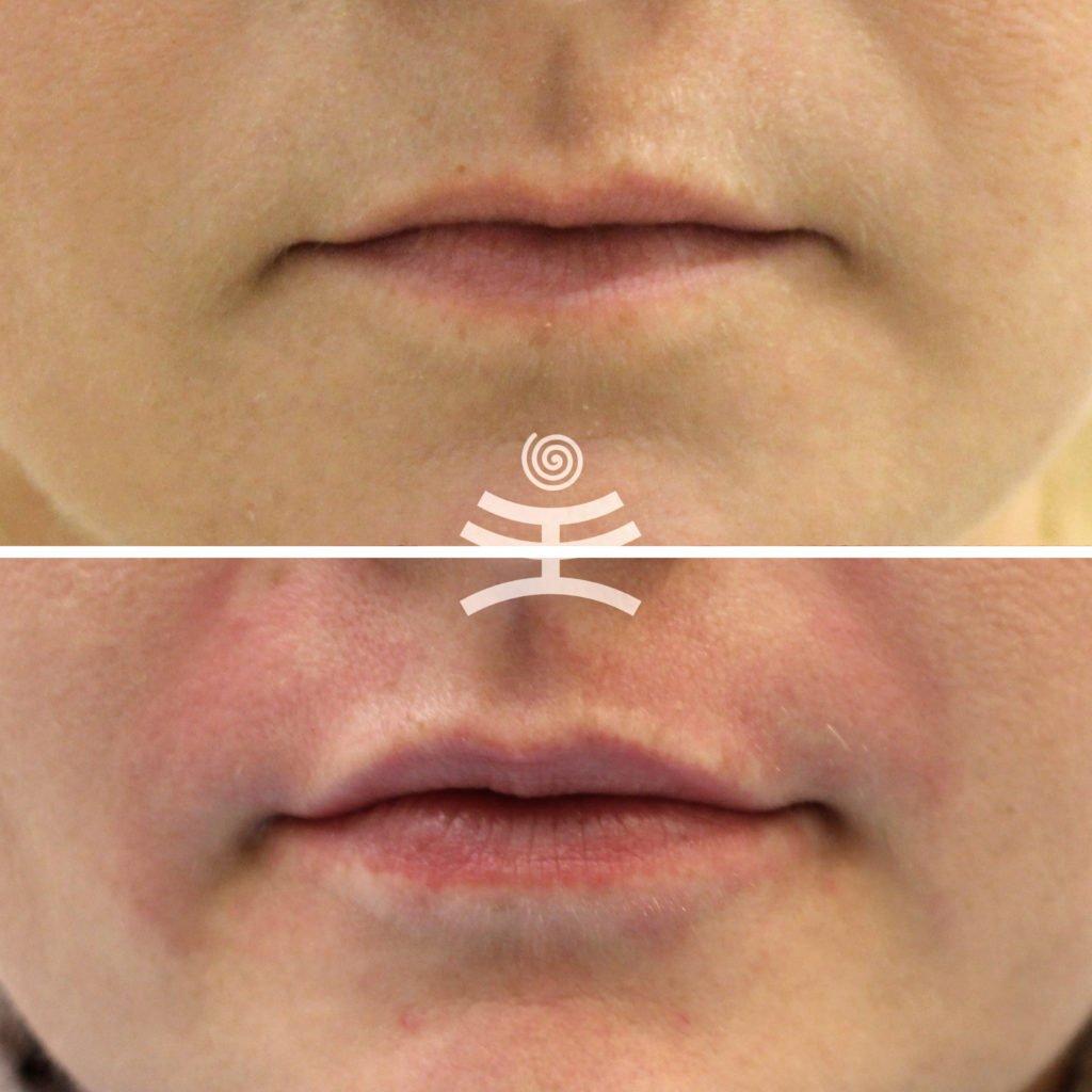 Увеличение губ |