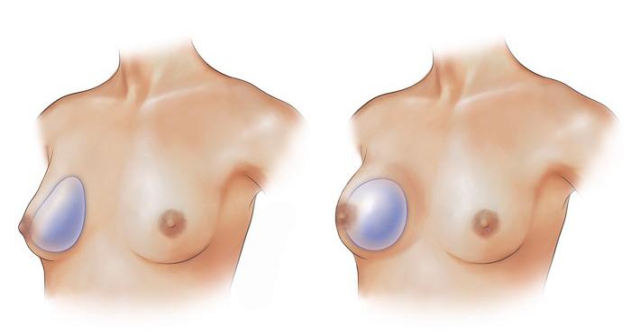 Увеличение груди в Медиэстетик