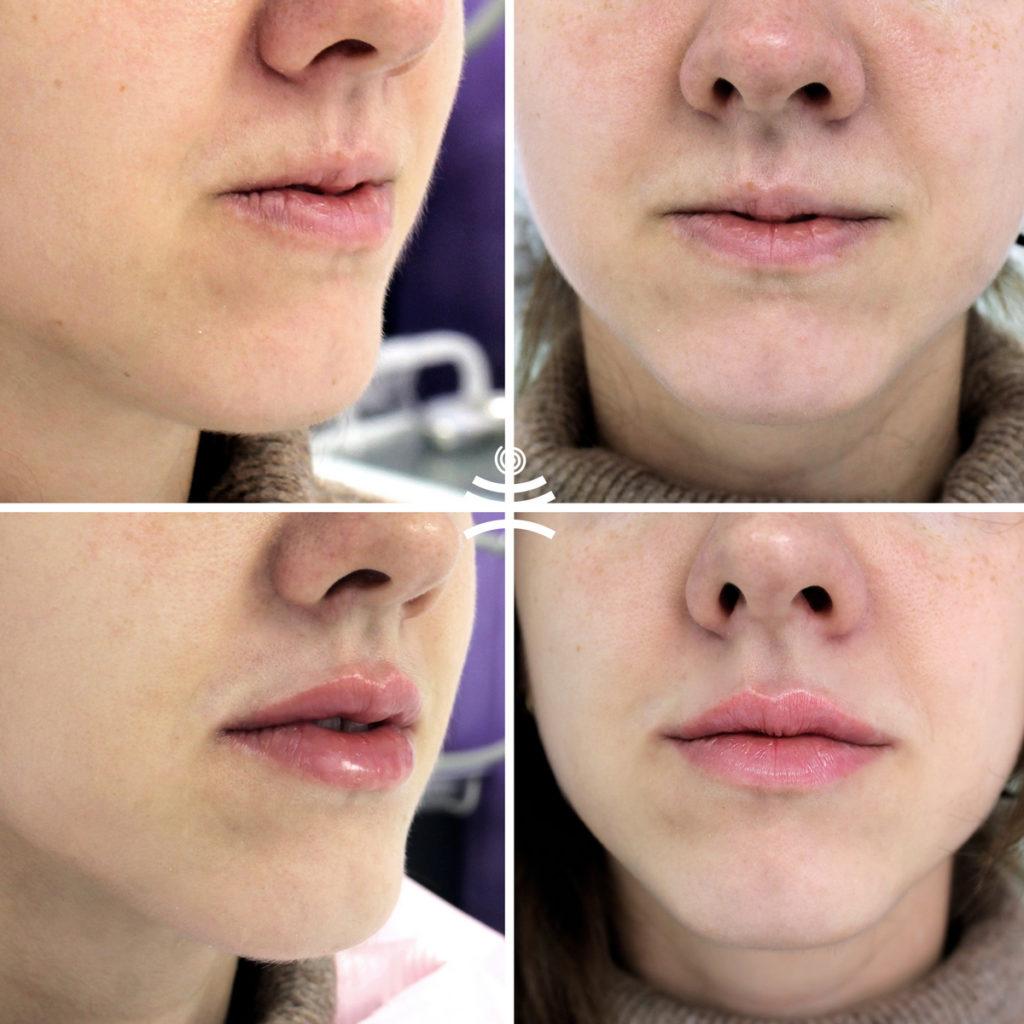 Увеличение губ филлерами | Увеличение губ филлерами
